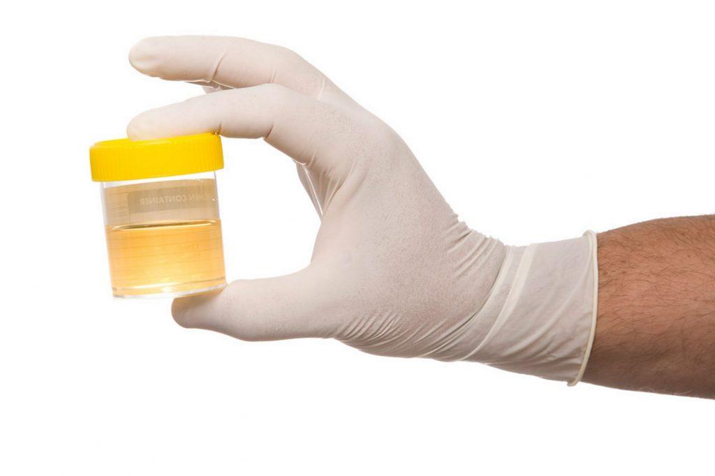 Un barattolo per l'esame delle urine