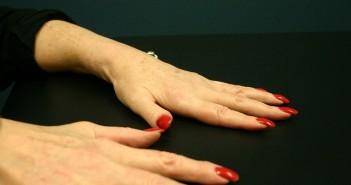 Artrite reumatoide alimentazione vegana